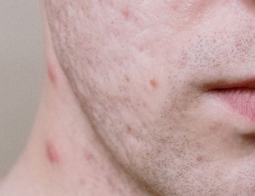 The Difference Between Adult Acne and Teen Acne